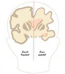 دراسة-سريرية-أولية-لعلاج-جديد-للزهايمر