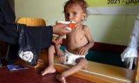 خطر-المجاعة-باليمن-مجلس-الأمن-قلق-ويدعو-لوقف-التصعيد