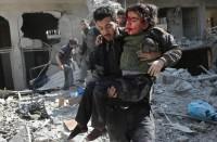 تركيا-تعلن-استعدادها-لعلاج-المدنيين-في-الغوطة-المحاصرة