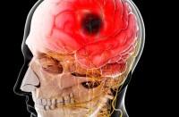 علماء-يبدأون-رحلة-الوصول-لعلاج-الزهايمر-وسكتات-الدماغ